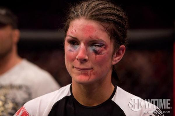 the 10 worst black eyes of all time