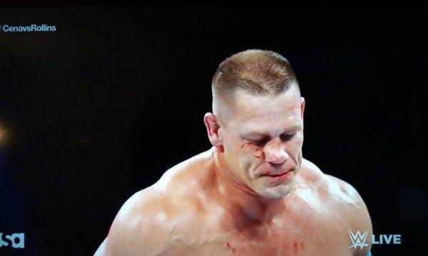 John Cena broken nose 2