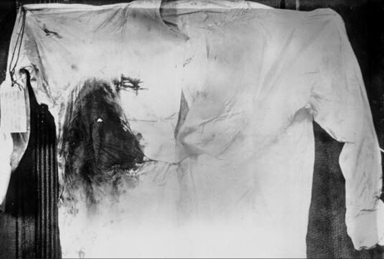 It's not like he was shot in the foot, either. Here's Teddy's shirt after he was shot.