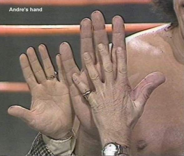 andre-hands