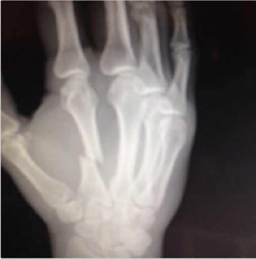 Ryan Bader broke the hell out of his hand when he destroyed Anthony Perosh in 2013. X-Ray taken from his Instagram account.